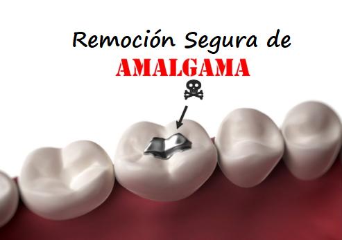 remocion_segura